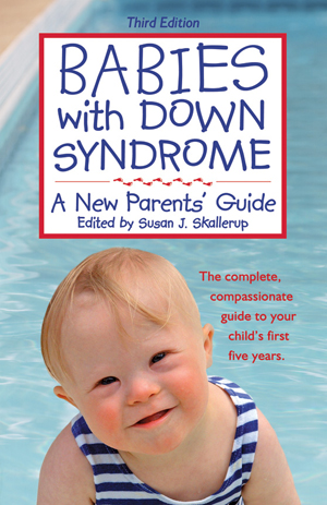 babies_with_down_syndrome3.jpg